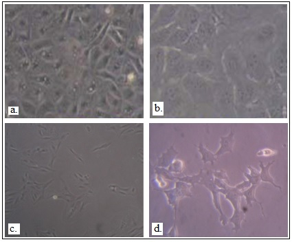 Figure 2 Differentiation of hESCs into lung- lineage specific cells