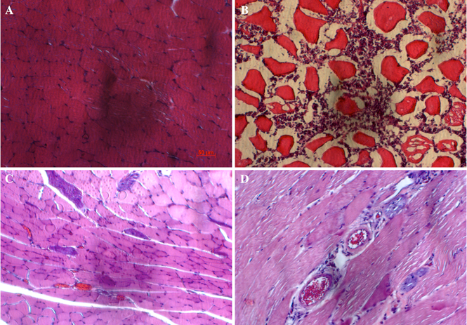 Figure 5 The changes in histology of hindlimb muscles after treatment