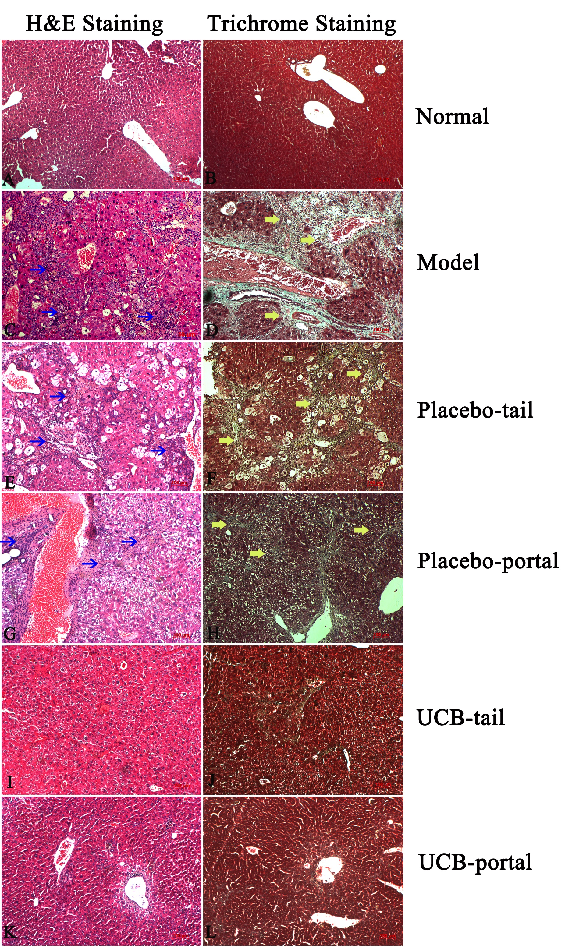 Figure 5 H&E and Trichrome staining after 21 days of treatment